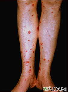 Henoch-Schonlein purpura on the lower legs