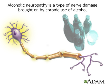 Alcoholic neuropathy