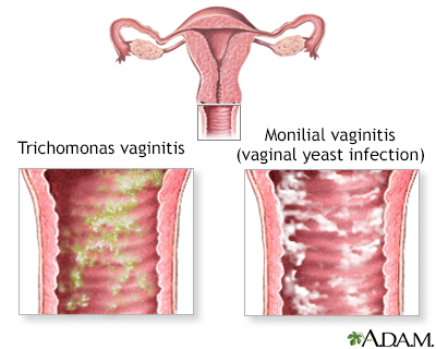 Causes of vaginal itching