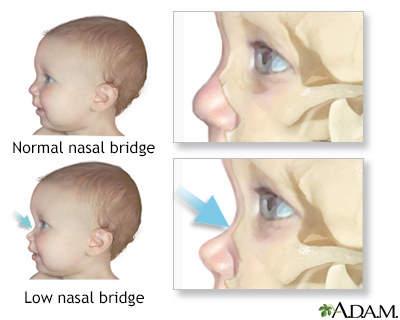 Low nasal bridge