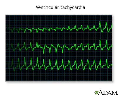 Ventricular tachycardia