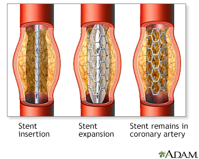 Coronary artery stent