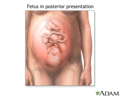 Posterior Presentation