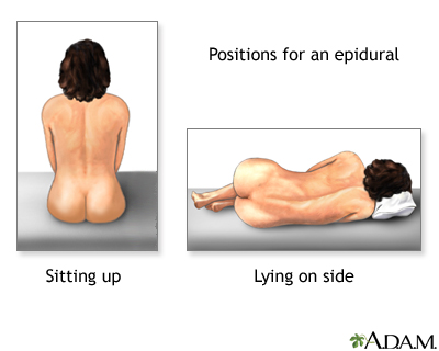 Procedure - Epidural 2