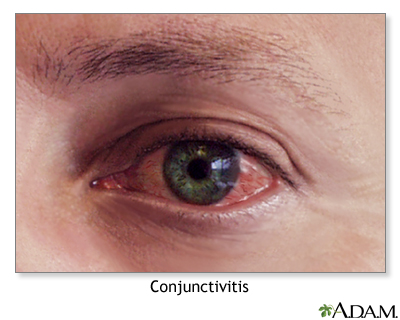 Conjunctivitis
