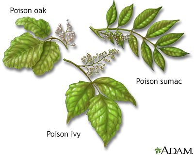Poison plants