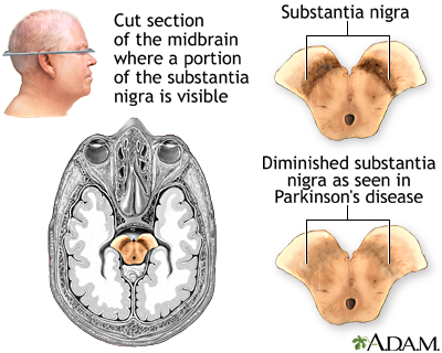 Substantia nigra and Parkinson's disease
