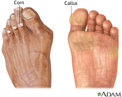 Corns and calluses
