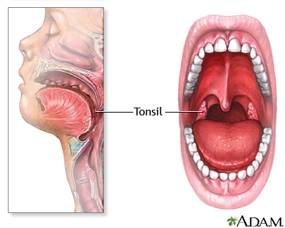 Tonsils