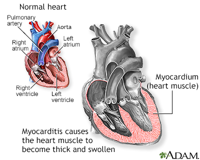 Myocarditis