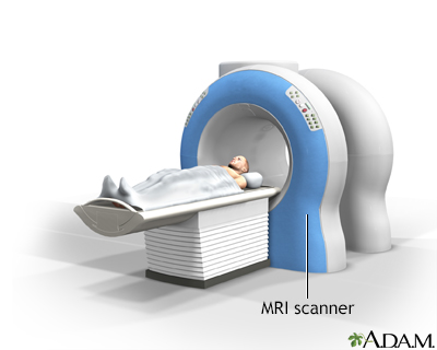 MRI scans