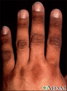 Acanthosis nigricans on the hand