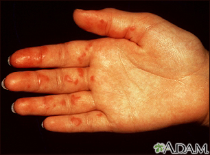 Vasculitis on the palm