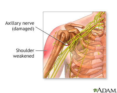 Damaged axillary nerve