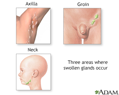 Swollen glands