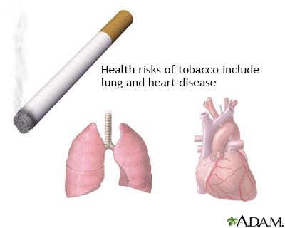 Tobacco health risks