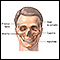 Craniofacial reconstruction - series