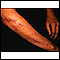 Lichen planus on the arm