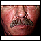 Systemic lupus erythematosus rash on the face