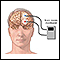 Brain wave monitor