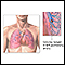 Pulmonary embolus